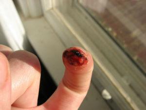 Bezpieczna praca elektronarzędziami - zranienia